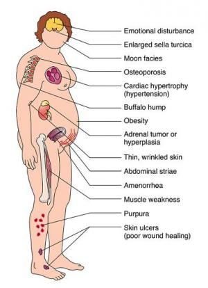 Симптоми на синдром и болест на Кушинг